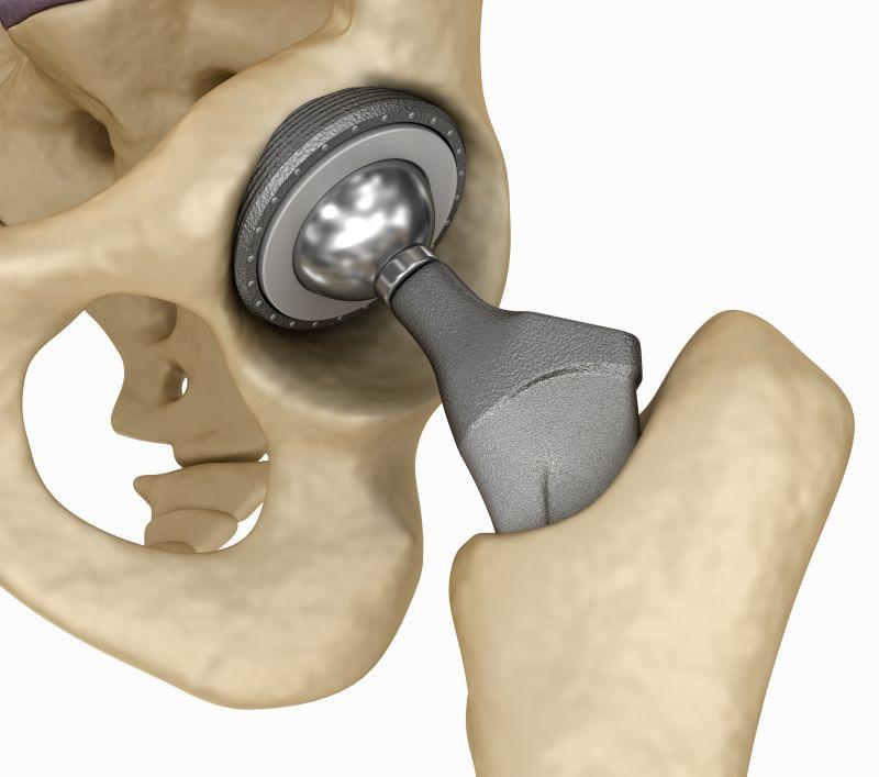 Dr Dan Albright hip replacement